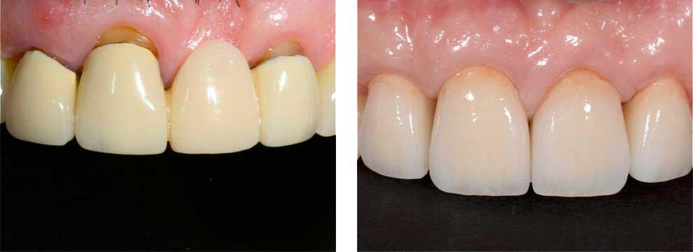 Two Natural Teeth