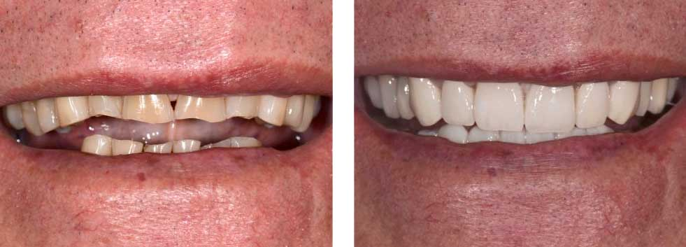 Full Mouth Reconstruction All Lower Implants