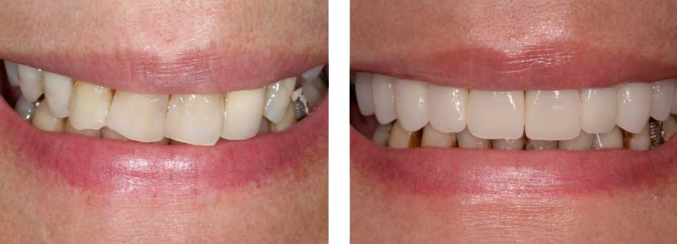 Full Mouth Reconstruction Smile Design