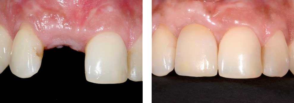 Crown Over Implant
