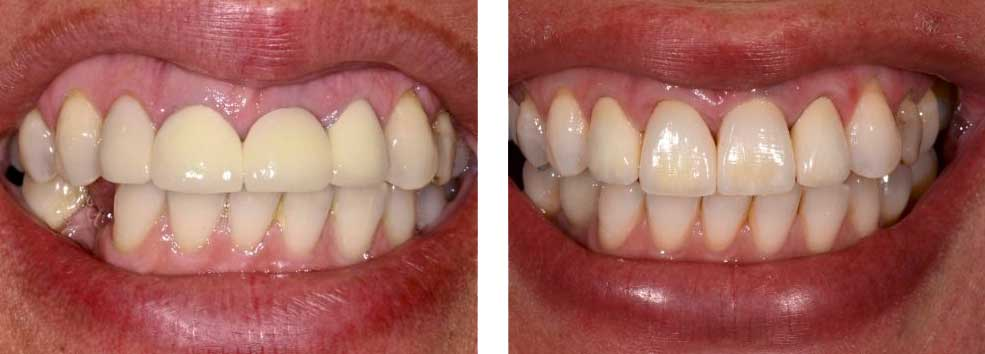 Crown Lengthening, Implant and Porcelain Crowns