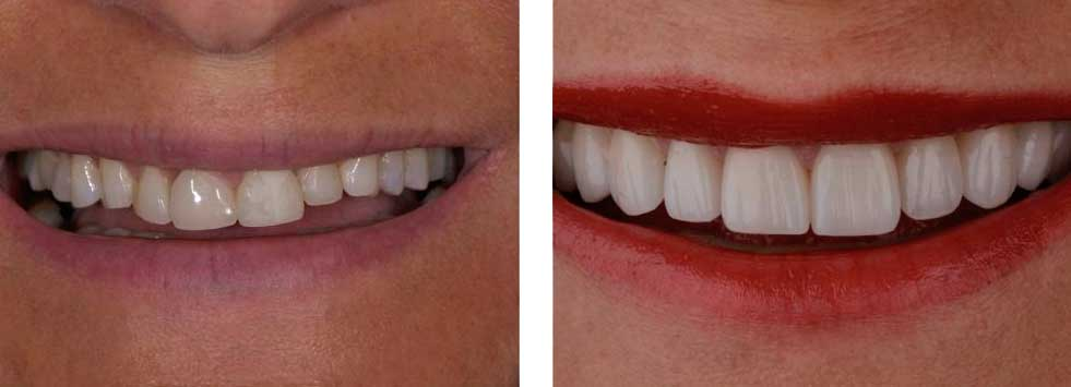 Smile Design Veneers