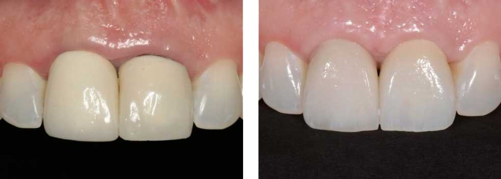 Anterior Crowns (One Over Implant)