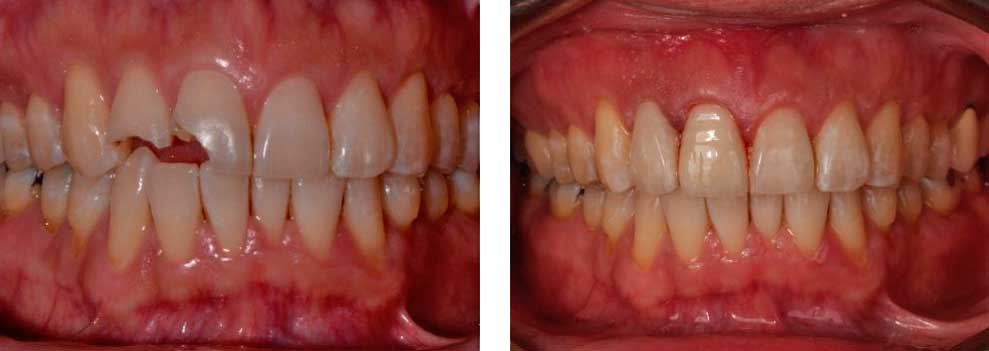 Full Contour Cosmetic Crowns